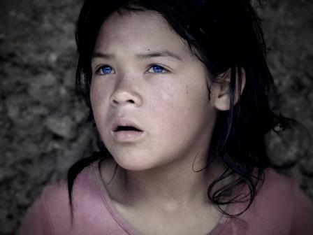 Marleny, niña símbolo de la I Misión Médica que se realizará los dias 10, 11 y 12 en Chachapoyas